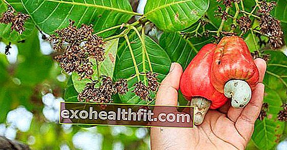 Cây điều và bệnh thiếu máu: Khám phá cách chống lại bệnh tật với sự giúp đỡ của trái cây